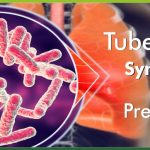 Tuberculosis Symptoms Prevention and Everything Else You Must Know